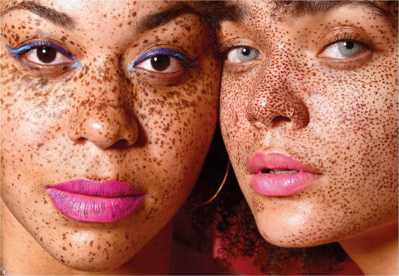 Waarom lipverzorging juist in de zomer belangrijk is