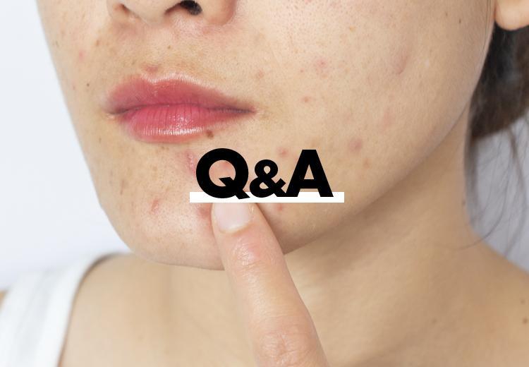 Wat kun je doen tegen littekens?